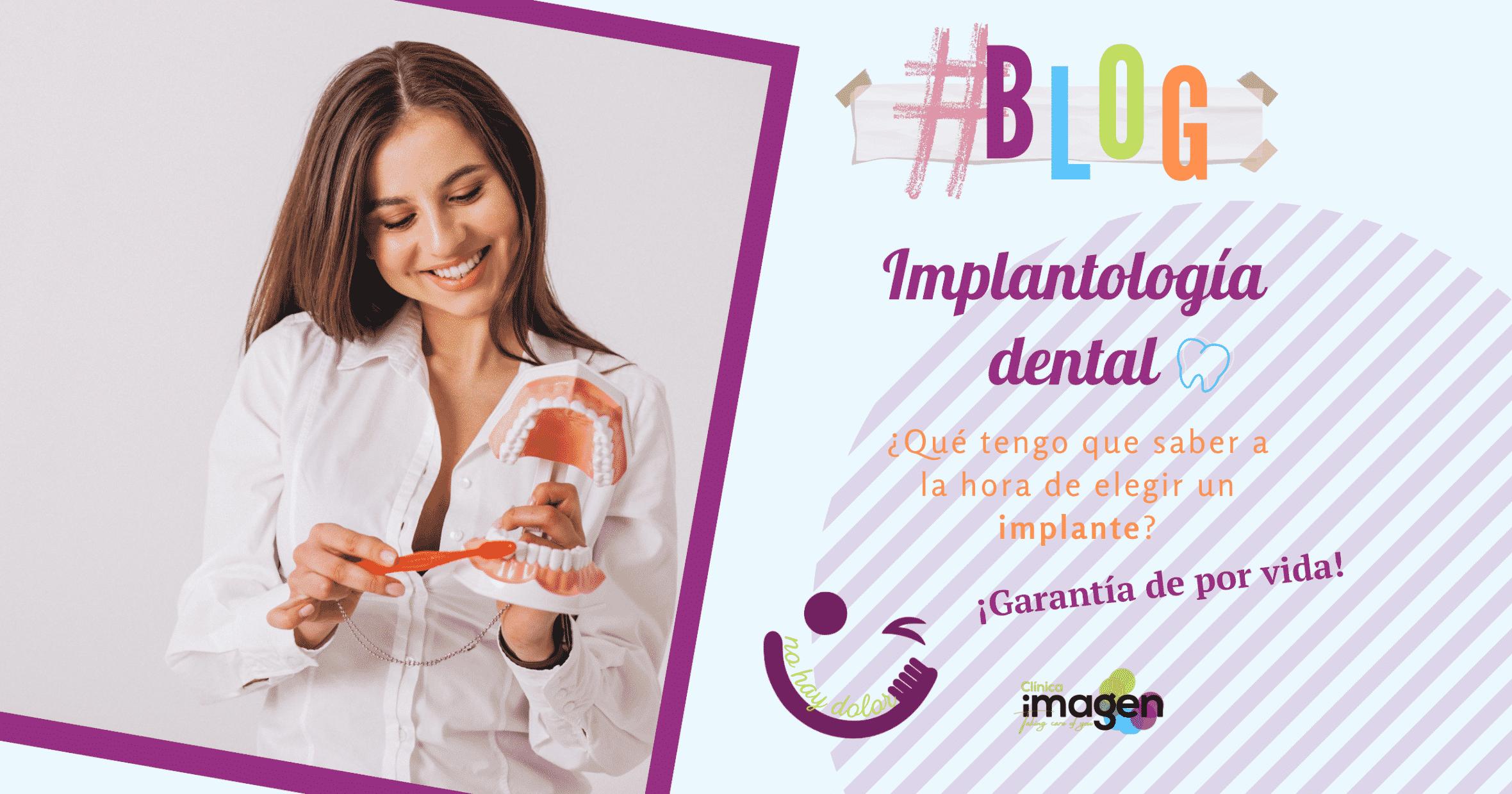 Implantología Dental - Sevilla