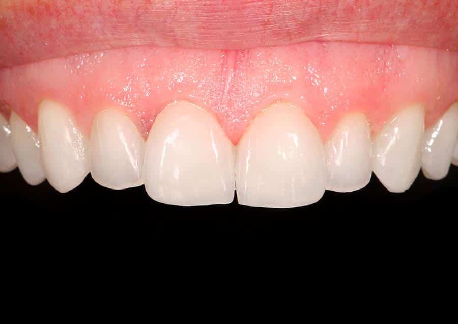 cambio-estetico-dental (1)