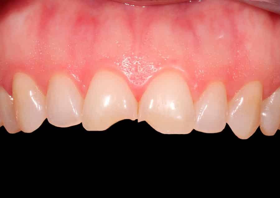 cambio-estetico-dental (2)