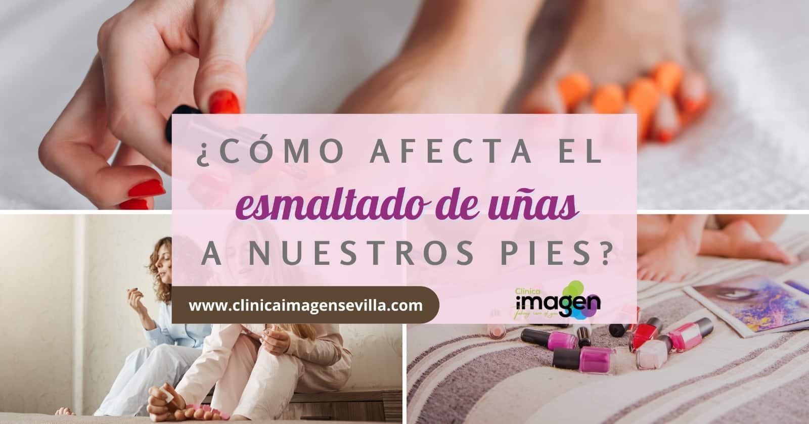 esmalte uñas pies Sevilla