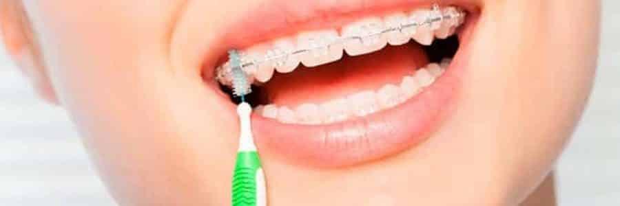 cuidado-dientes-con-ortodoncia