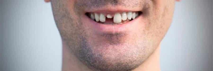 perdida-de-los-dientes